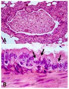 Staupe Virus unter dem Mikroskop